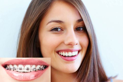 Metal brackets (with tooth extraction)