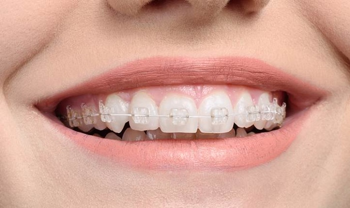 Ceramic brackets (without tooth extraction)